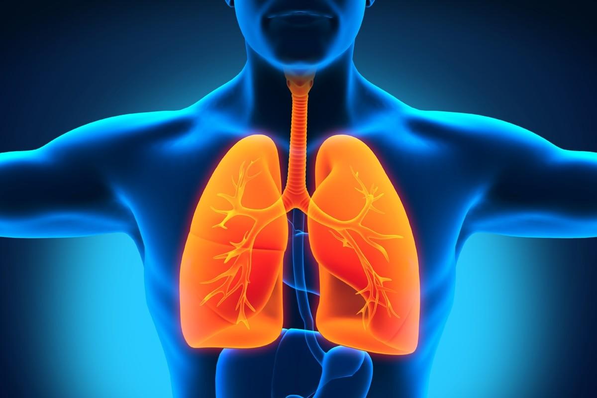 Menurunkan Resiko Penyakit TBC