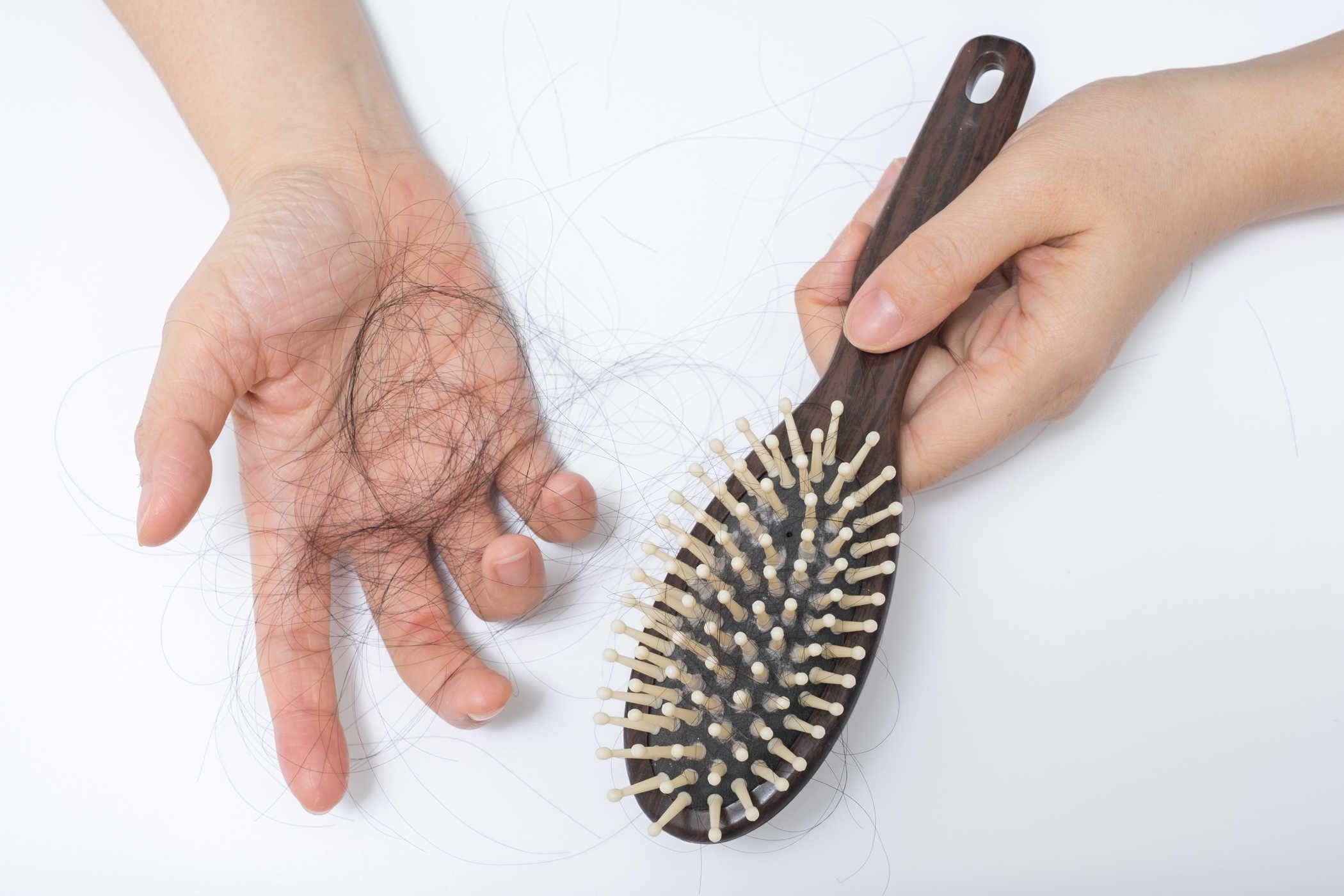 minyak kelapa untuk rambut rontok